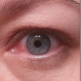 There's A Red Bump On My Eyeball